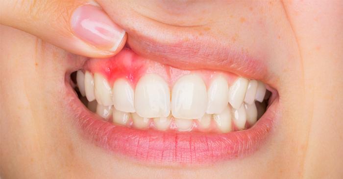 Thường xuyên bị chảy máu chân răng là bệnh gì?
