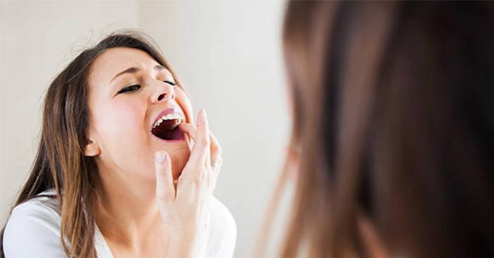 Đau răng hàm trên – Nguyên nhân, triệu chứng và cách chữa trị