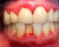 Chảy máu chân răng hướng dẫn điều trị tại nhà cực đơn giản