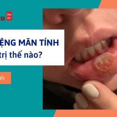 Tìm hiểu về cách chữa nhiệt miệng mãn tính