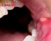 [Hỏi – đáp] Làm sao để chữa trị nhiệt miệng trong 1 ngày?
