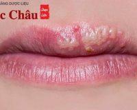 Sự thật về những vết rộp miệng (herpes miệng) và cách điều trị