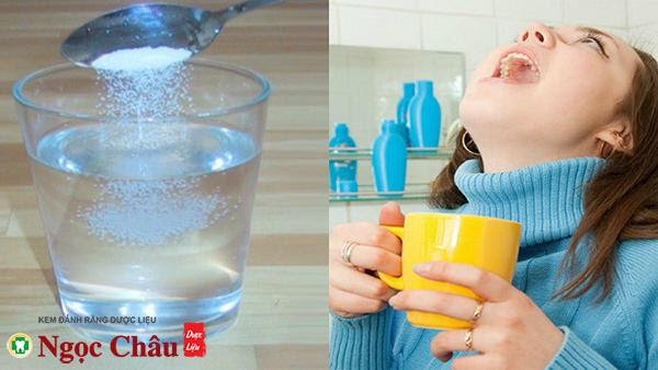 Súc miệng thường xuyên bằng nước muối giúp cải thiện tình trạng ê buốt răng