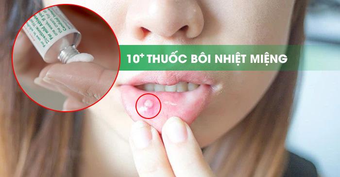 TOP 11 Loại Thuốc Bôi Nhiệt Miệng (Lở Miệng) Được Tin Dùng