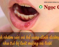 Cách chăm sóc và bổ sung dinh dưỡng cho trẻ bị loét miệng và lưỡi