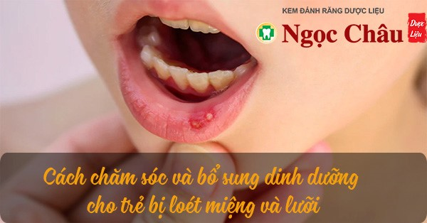 Trẻ Bị Nhiệt Lưỡi, Viêm Loét Miệng Phải Làm Gì?