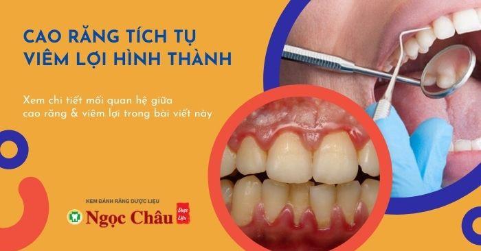 Cao răng và viêm lợi có liên quan gì đến nhau?