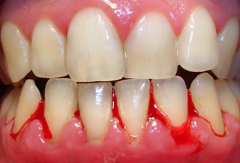 Phương pháp lấy cao răng được áp dụng khi viêm nướu ở mức độ nhẹ