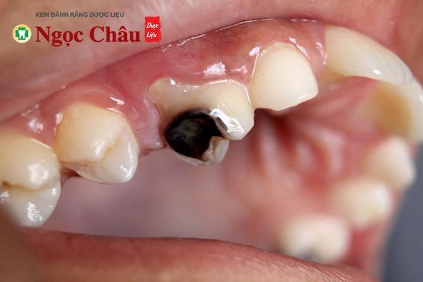 Sâu răng khiến ê buốt chân răng