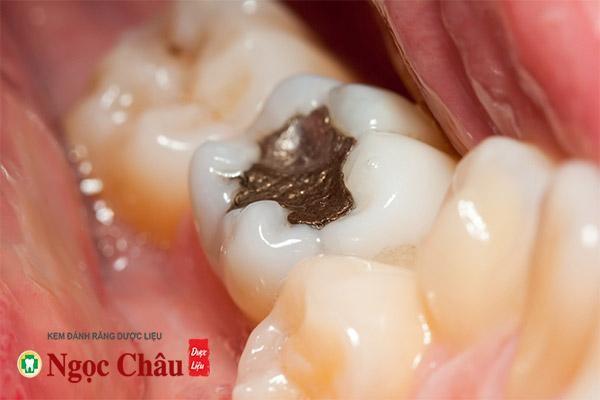 Trám răng sẽ giúp khôi phục lại cấu trúc răng, ngăn không cho vi khuẩn sâu răng tiếp tục tấn công