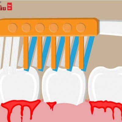Đánh răng bị chảy máu chân răng là bệnh gì? Cách chữa ra sao