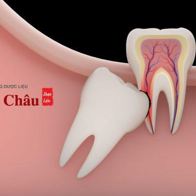 Nhổ sâu răng số 8 hàm dưới hay hàm trên nguy hiểm hơn?