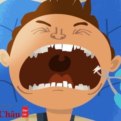 Răng khôn bị sâu – Nên nhổ hay trám răng?