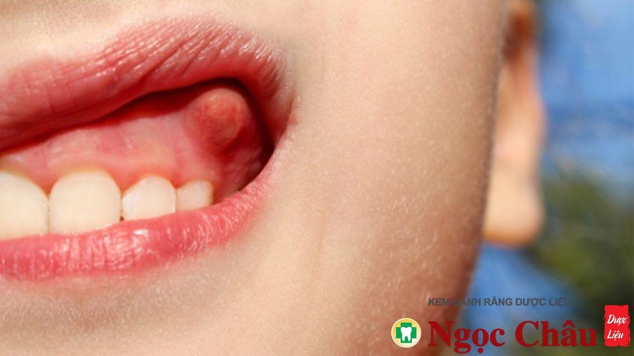 Sâu răng viêm sưng lợi