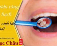Sưng nướu răng và nổi hạch cảnh báo bệnh gì và có nguy hiểm không?
