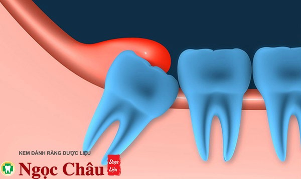 Triệu chứng phổ biến và thường gặp nhất khi mọc răng khôn là sưng đau lợi