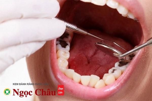 sâu răng nặng