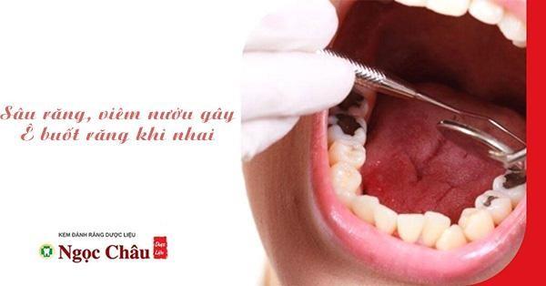 Sâu răng, viêm tủy sẽ khiến bạn bị ê buốt khi nhai