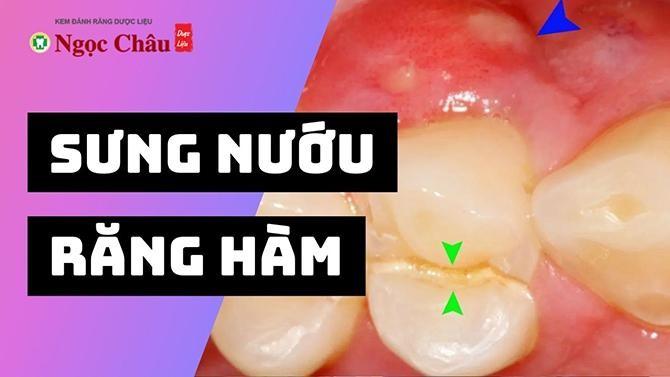 Bị sưng nướu răng hàm trên hàm dưới điều trị thế nào?