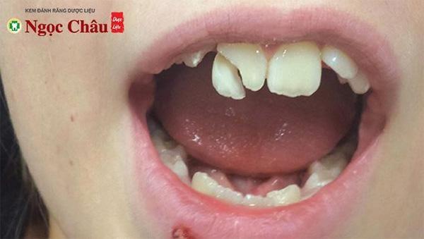 Răng bị va đập chấn thương khiến bạn có cảm giác ê buốt