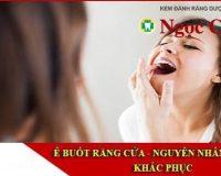 Ê buốt răng cửa – Nguyên nhân và cách điều trị ra sao?