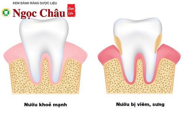 Khi bị viêm lợi, dưới chân răng tích tụ nhiều vi khuẩn khiến cho răng nướu trở nên nhạy cảm hơn