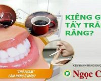 Tẩy trắng răng xong nên kiêng gì?