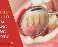 Bạn có muốn biết: Cạo vôi răng có làm trắng răng không?