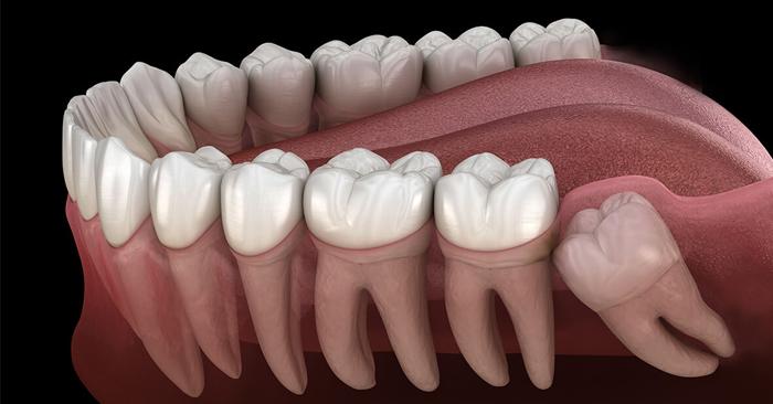 Mọc răng khôn khiến tình trạng răng bị đau nhức khó chịu