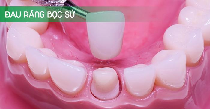 Đau răng sau bọc sứ thì phải làm thế nào?