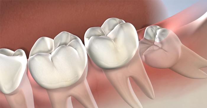 Mọc răng khôn có nguy hiểm không? Dấu hiệu và cách xử lý