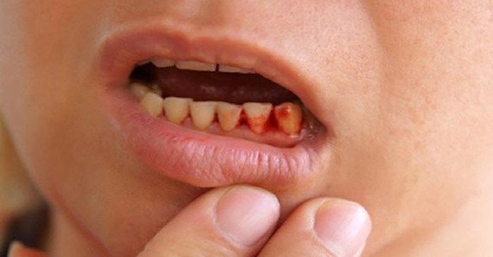 Chảy máu chân răng ở trẻ em – Nguyên nhân và cách điều trị