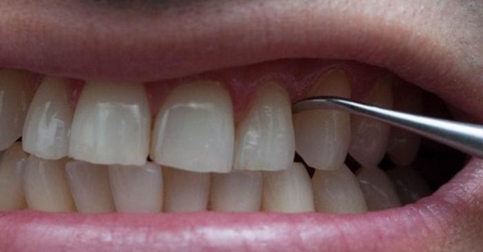 Lấy cao răng định kỳ giúp bạn hạn chế tình trạng đau nhức răng