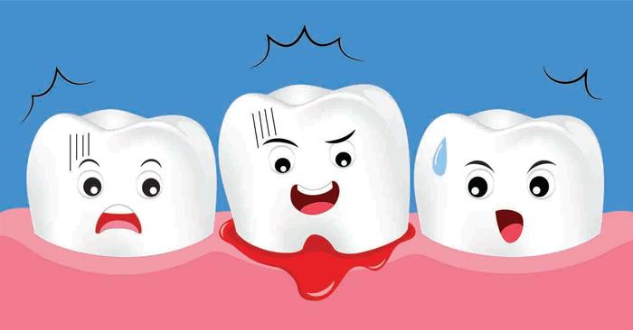 Ê buốt răng kèm chảy máu chân răng có nguy hiểm không?