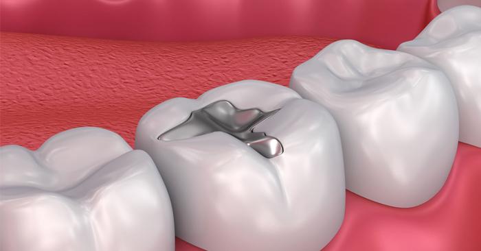 Ê răng sau khi trám – Nguyên nhân và cách chữa trị