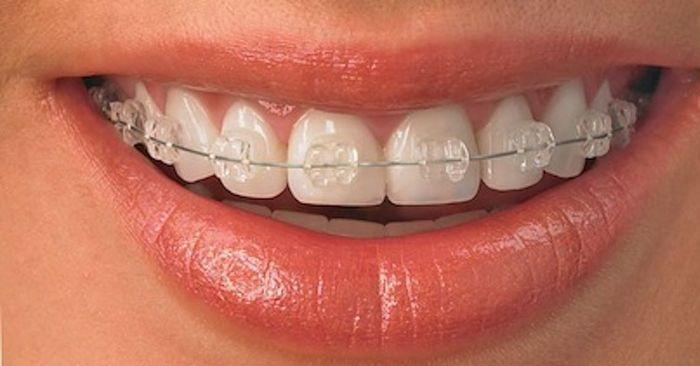 Ê buốt răng sau khi niềng răng – Làm cách nào để bớt khó chịu?