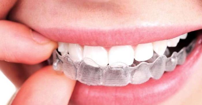 Tẩy trắng răng bằng máng tại nhà và những điều lưu ý