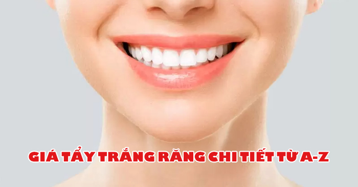 Giá Tẩy Trắng Răng Hết Bao Nhiêu Tiền? Tất cả chi phí tẩy trắng răng bạn nên biết
