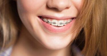 Nhiệt miệng, loét miệng khi niềng răng và cách xử lý tại nhà