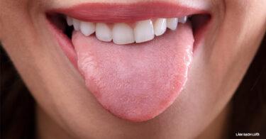 TOP 9 Cách Làm Sạch Lưỡi Đơn Giản Tại Nhà