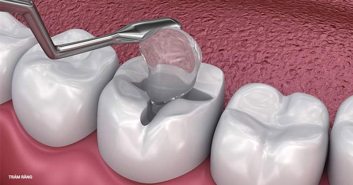 Có nên trám răng sâu không? Phương pháp nào vừa bền vừa rẻ?