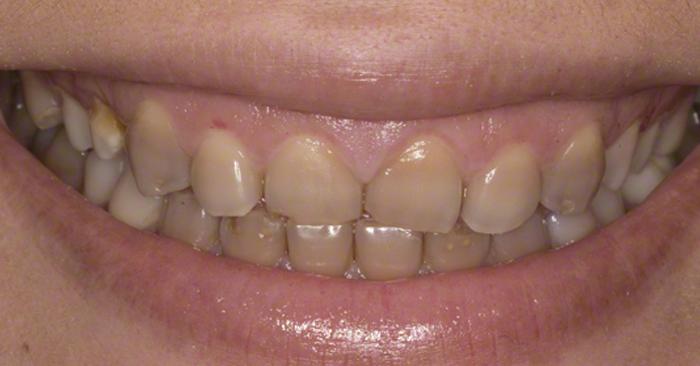 Răng bị nhiễm tetra thì màu răng sẽ chuyển sang vàng, nâu, xám tím, xám xanh