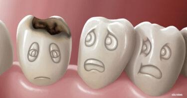 Nguyên Nhân Sâu Răng Và Cách Điều Trị Tại Nhà