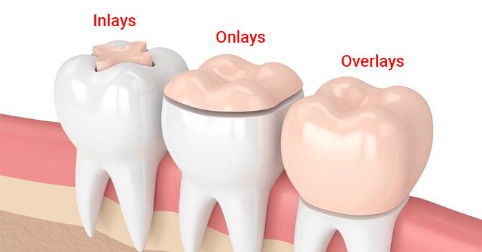 trám răng sâu bằng phương pháp inlays