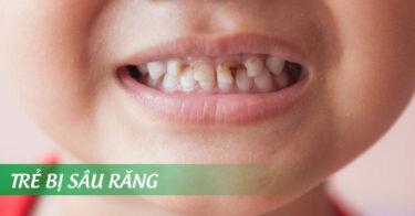Bé bị sâu răng – Nguyên nhân và cách chữa trị