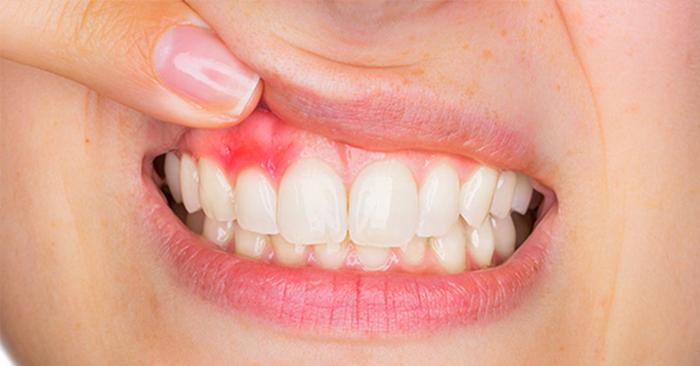 Biểu hiện của sưng nướu răng