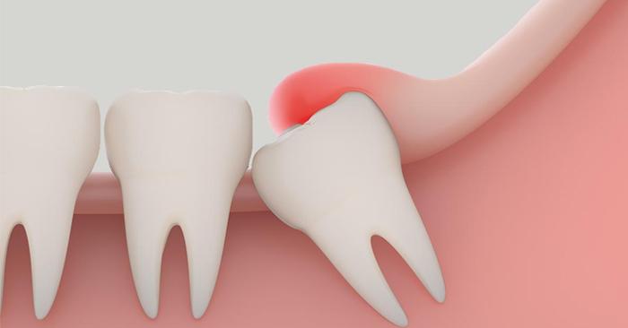 Viêm lợi trùm răng khôn – Nguyên nhân và cách điều trị
