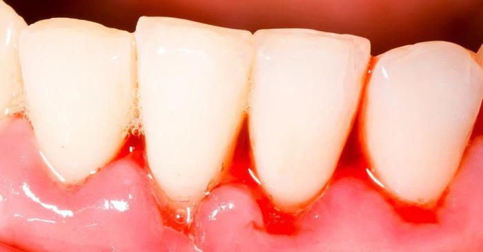 Viêm nướu răng (viêm lợi) – Nguyên nhân và cách điều trị