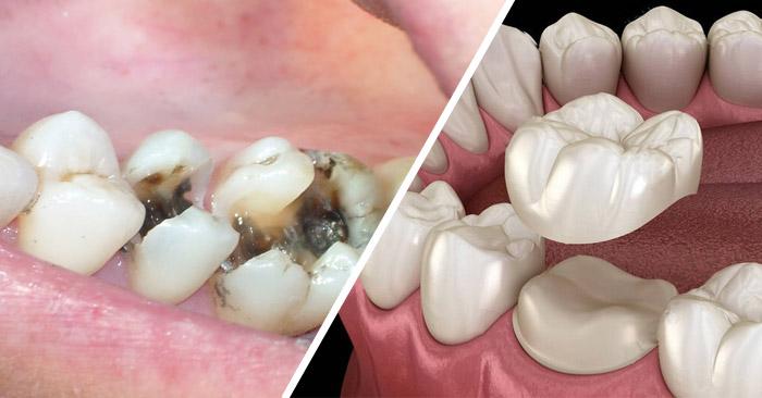 Bọc răng sứ cho răng sâu – Có tốt hơn trám không?
