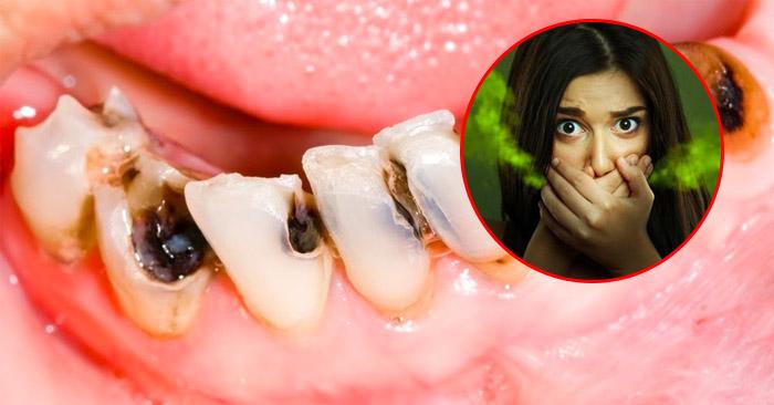 Cách chữa sâu răng hôi miệng hiệu quả tại nhà